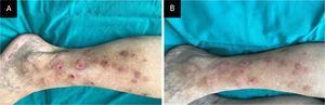 Caso 1. (A) Pápulas e nódulos múltiplos, eritematosos ou hiperpigmentados, erodidos, escoriados ou liquenificados, de tamanho variável na perna direita de paciente com transtorno de escoriação. (B) Melhora clínica parcial após duas semanas de tratamento com N‐acetilcisteína.