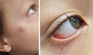 Apresentação clínica do paciente 1: lesão eritematosa granular na conjuntiva tarsal inferior direita e linfadenopatia submandibular (síndrome oculoglandular de Parinaud).