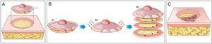 """Cirurgia micrográfica de Mohs. (A), Demarcação do tumor visível e exérese com margem entre 1 a 2mm. O fragmento de pele é excisado com o bisturi angulado a 45°, o que facilita o posicionamento das margens cirúrgicas no mesmo plano. (B), (1) Peça cirúrgica. As margens cirúrgicas que devem ser examinadas correspondem a toda porção lateral e toda porção profunda. (2) As setas indicam o """"rebaixamento"""" das margens para o mesmo plano. (3) Após a peça ser congelada no criostato, cortes histológicos """"horizontais"""" são realizados, possibilitando a análise de 100% das margens laterais e profunda. Os três pontos escuros correspondem a raízes do tumor observadas no exame microscópico. (C), Os pontos remanescentes de tumor são excisados para nova análise no microscópio."""