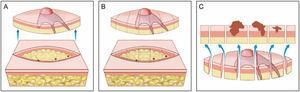 """Cirurgia convencional. (A), Excisão elíptica com ampla margem cirúrgica ao redor do tumor. (B), Peça cirúrgica. As linhas pontilhadas indicam os cortes histológicos realizados verticalmente na peça, como se fosse um pão de forma (""""bread‐loaf""""). Esses cortes representam apenas cerca de 0,1% a 1% das margens cirúrgicas e podem deixar de detectar raízes do tumor durante o exame microscópico. Os três pontos correspondem a raízes do tumor que """"ficaram"""" no paciente, mas não foram identificadas no exame microscópico porque não foram incluídas nos cortes histológicos examinados. (C), Correlação entre o material proveniente de exérese cirúrgica e a observação do tumor em corte longitudinal. As setas azuis indicam os cortes histológicos que são analisados na cirurgia convencional. Note a grande quantidade de margem não examinada (desenho inferior) no método convencional."""