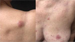 Placa infiltrada na região escapular e pápulas e placa infiltrada na mama e região esternal.