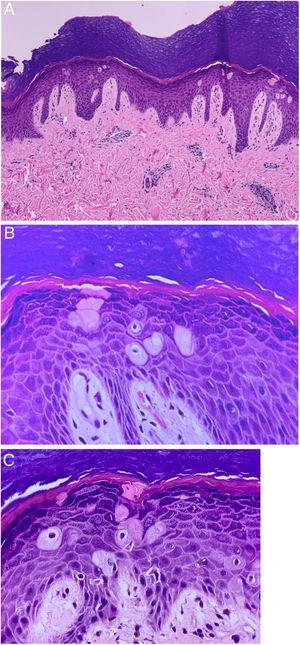 Disqueratose pagetoide. (A), Hiperqueratose, hipergranulose e leve acantose. Células volumosas com citoplasma amplo e eosinofílico, núcleo picnótico e halo claro perinuclear em meio aos queratinócitos. Derme superficial e profunda congesta com discreto infiltrado linfomononuclear perivascular (Hematoxilina & eosina, 100×). (B e C), Células disqueratóticas bem evidenciadas (Hematoxilina & eosina, 400×).