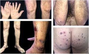 Lesões purpúricas nas mãos, lesões papulopustulosas, purpúricas e ulceronecróticas nos membros inferiores e lesões ulceronecróticas na região glútea e cotovelo.