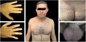 Paciente com melhora evolutiva do quadro após início do tratamento medicamentoso (julho2019).