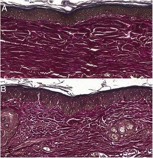 (A), Ferida tratada com tacrolimus 0,1% evidenciando marcação forte e fibras elásticas organizadas (Verhoeff, 20×). (B), Ferida controle evidenciando marcação fraca e fibras elásticas desorganizadas (Verhoeff, 20×).