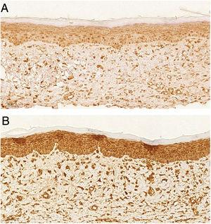Imuno‐histoquímica para actina de músculo liso. (A), Ferida tratada com tacrolimus 0,03%, evidenciando marcação fraca (20×). (B), Ferida controle evidenciando marcação forte (20×).
