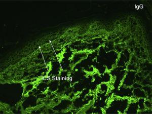 Imunofluorescência direta demonstrando deposição intercelular (ICS) de IgG.