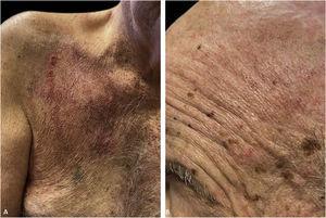 Cicatrização completa três semanas após o início da terapia imunossupressora com eritema residual nas duas lesões. Cicatriz linear no meio do tórax direito agora pode ser vista no centro.