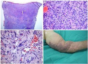 Variante anaplásica do sarcoma de Kaposi. (A‐C), imagens histopatológicas; (D), imagens clínicas. Densa proliferação tumoral na derme (A, Hematoxilina & eosina, 40×), composta principalmente por células epitelioides com pleomorfismo e mitoses frequentes (B, Hematoxilina & eosina 400×). ©, Dissociação de feixes de colágeno por fendas vasculares revestidas por células endoteliais atípicas (Hematoxilina & eosina, 200×). (D), Grande placa violácea e infiltrada com áreas papilomatosas no membro superior esquerdo.