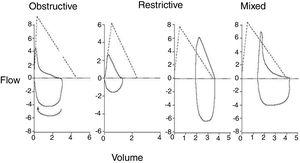 Morphology of flow-volume curve in different respiratory functional patterns.