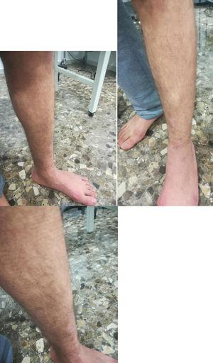Visible mass standing and straining the leg muscles approximately 2cm, seen along the anterior aspect of the leg in its mid-part.